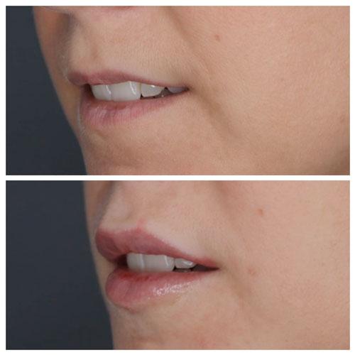 aumento de labios precio madrid