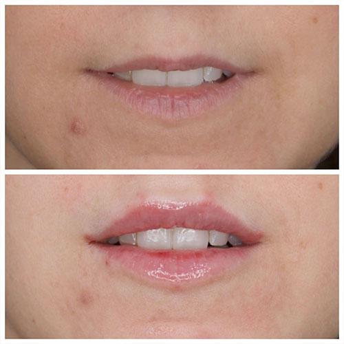 antes aumento de labios en madrid