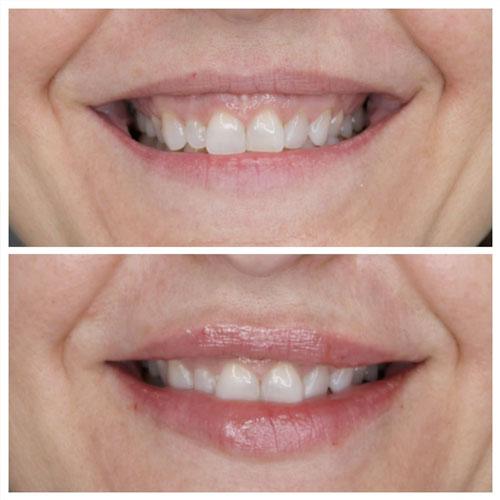antes y despues aumento labios acido hialuronico madrid