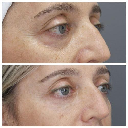 tratamiento acido hialuronico ojeras madrid