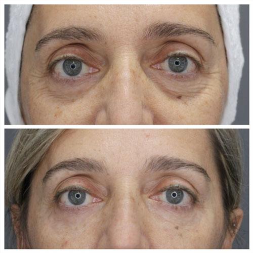 antes y despues relleno ojeras acido hialuronico en madrid